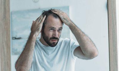Erkeklerde Saç Dökülmesi Önlenebilir mi?