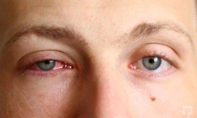 Göz Nezlesini 10 Dakika da Kurutan Formül!