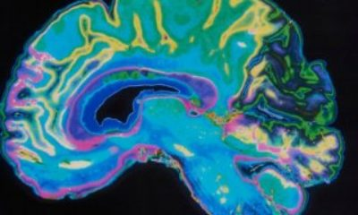 Düşünceleri metne dönüştüren yapay zeka geliştirildi