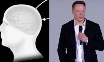 Elon Musk, 28 Ağustos'ta çalışan bir Neuralink cihazı gösterecek